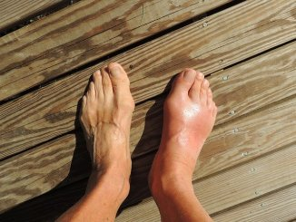 Gout in the feet.