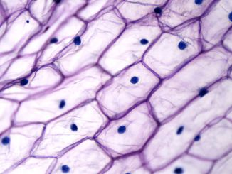 Onion plant cells are immobilized cell systems.