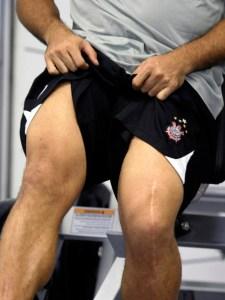 Травма ног у футболистов