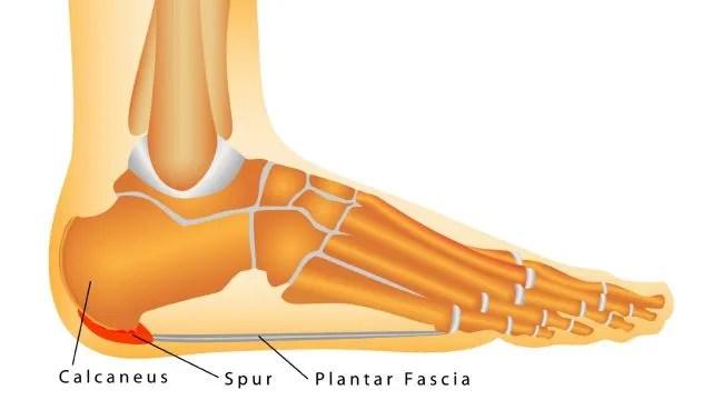 Heel And Arch Pain Plantar Fasciitis Heel Spurs