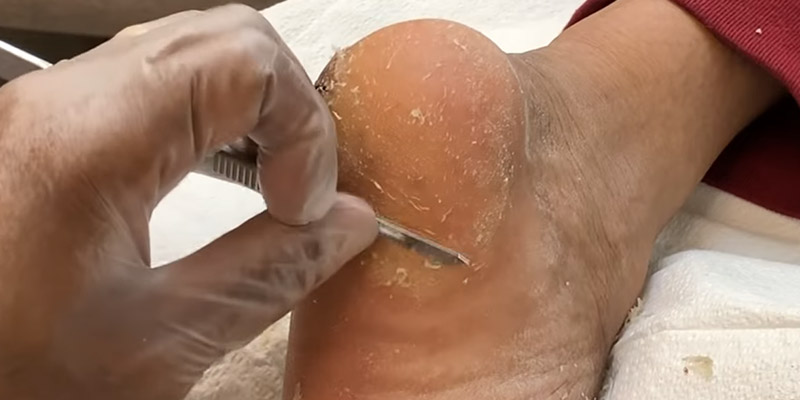 How To Heal Cracked Heels Fast