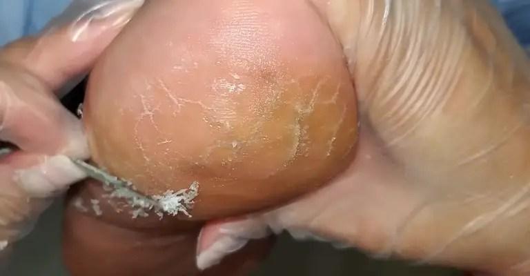 Best Crack Heel Repair Cream FI