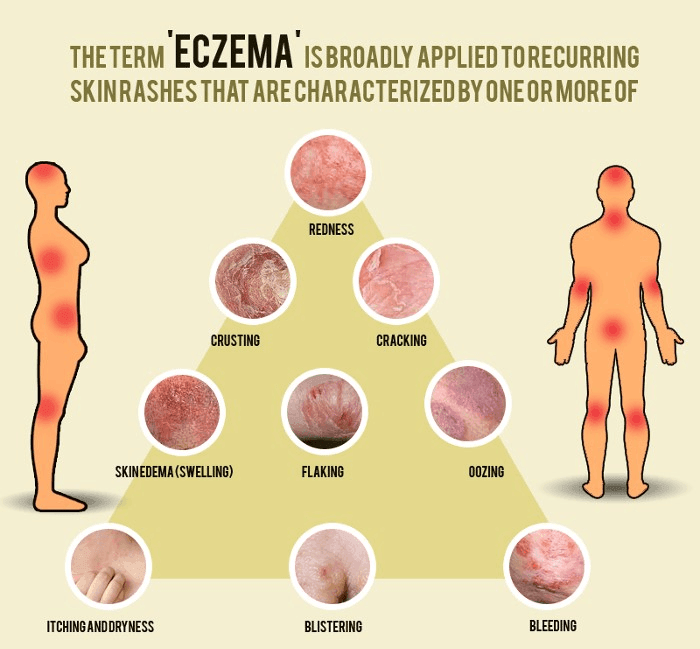 DIFFERENT TYPES OF ECZEMATOUS DERMATITIS