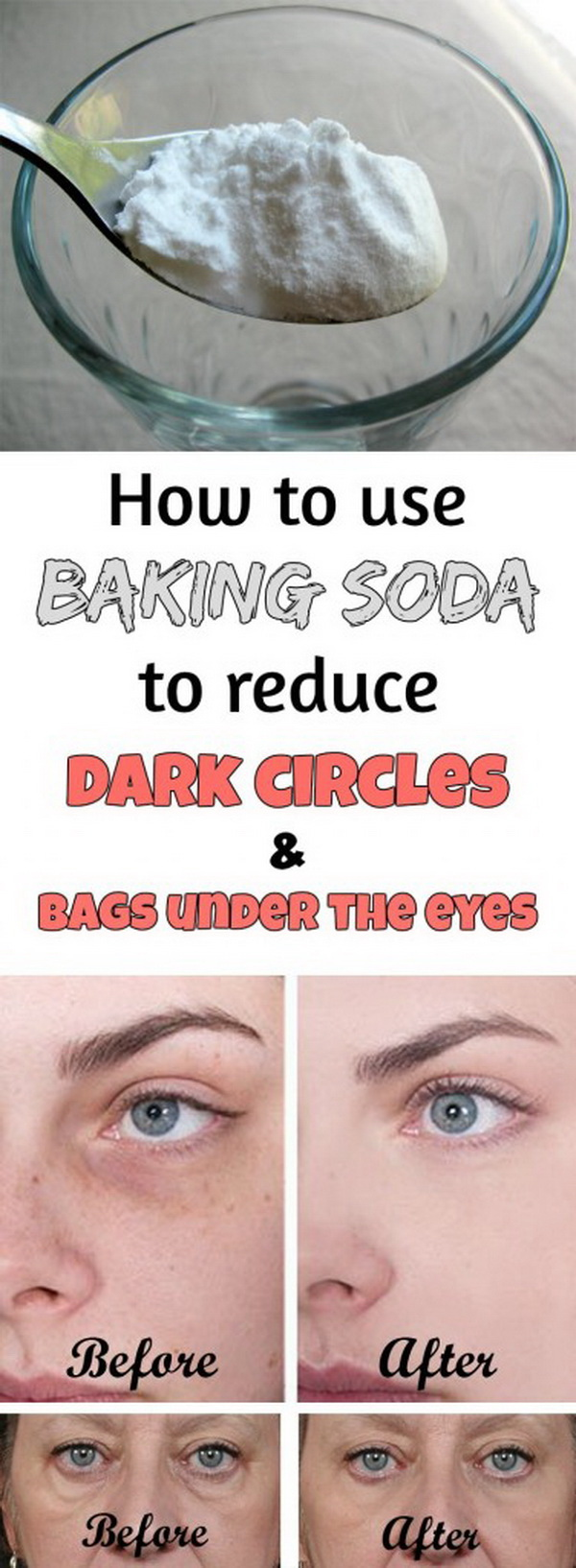 A healthy and fast way to get rid of the annoying dark circles or bags under your eyes with this homemade recipe. What you need is just a teaspoon of baking soda and some hot water!