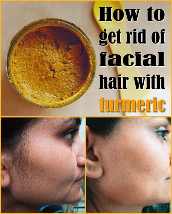 Turmeric has beed used for thousands of years by women in India to get rid of the annoying facial hair naturally! You can give it a try.