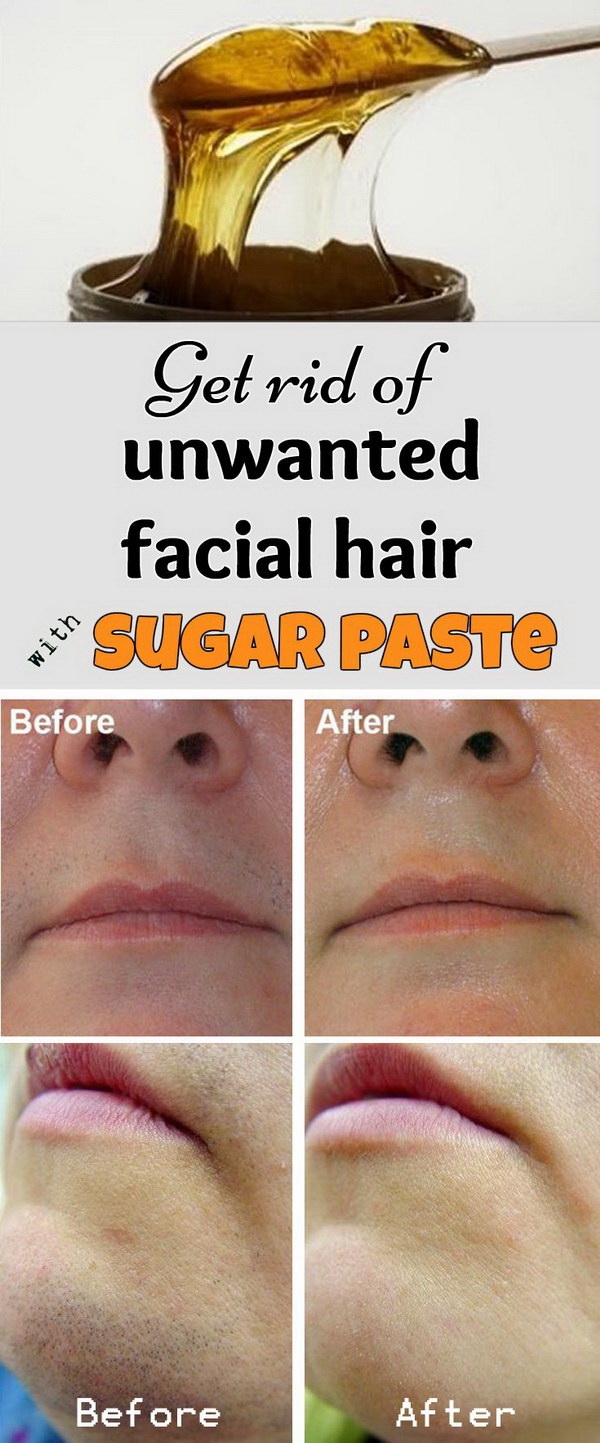 A paste or gel made of sugar, water and lemon juice does help to get rid of unwanted hair on the face effectively.