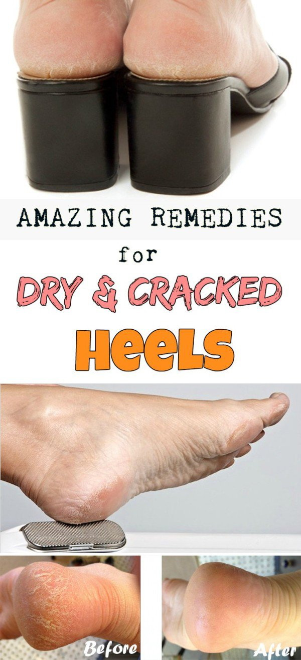 Amazing Remedies For Dry And Cracked Heels. It's easy to cause cracking of the skin when heels extend out overweight. Here is a good homemade remedy for you to get rid of cracked heels.