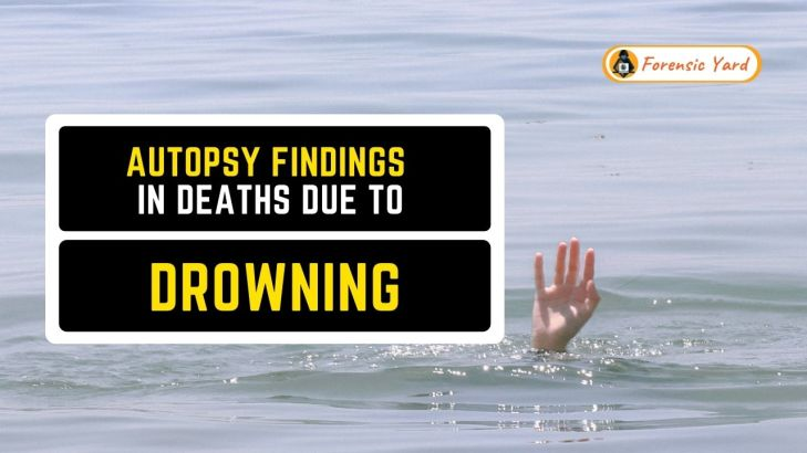 Autopsy Findings in Deaths due to Drowning Forensic Yard (10)