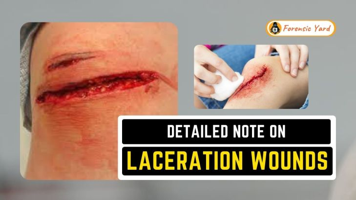 Detailed Note on Laceration Wounds Forensic Yard