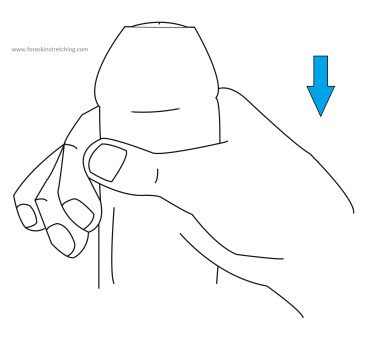 Vector drawing of foreskin stretching, by applying proximal pressure against the glans