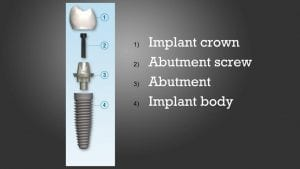 implant-tooth-construction-lynchburg
