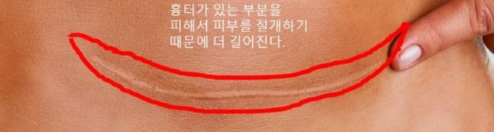 임신준비-제왕절개-흉터-재수술2.jpg.jpg