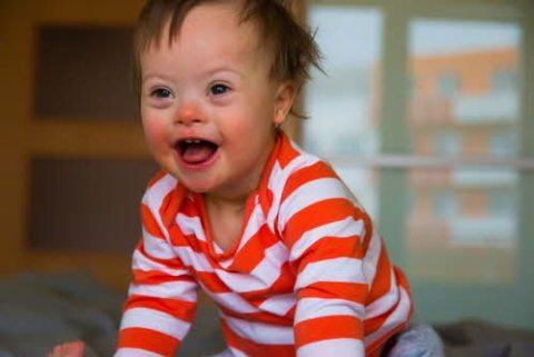 다운 증후군 아기, Down syndrome baby