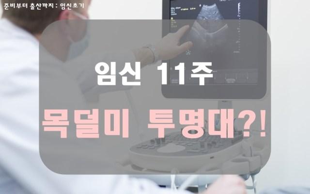목덜미 투명대(NT)에 대해 알아보자!(임신 11주)7 min read