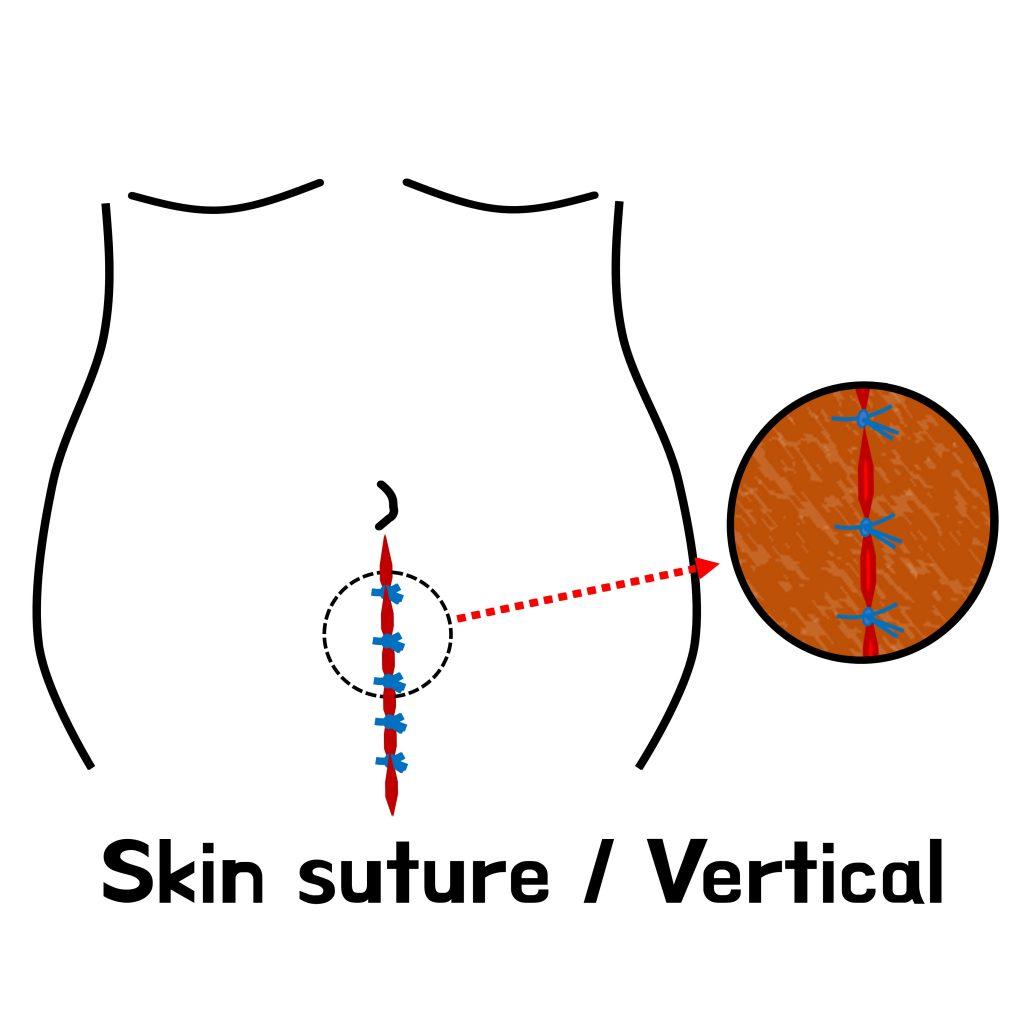 skin suture vertical.jpg