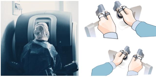로봇수술 콘솔, 자궁근종 수술법