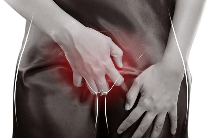 칸디다성 질염 vaginal candidiasis