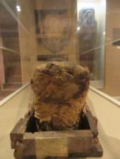 Les pieds de momie
