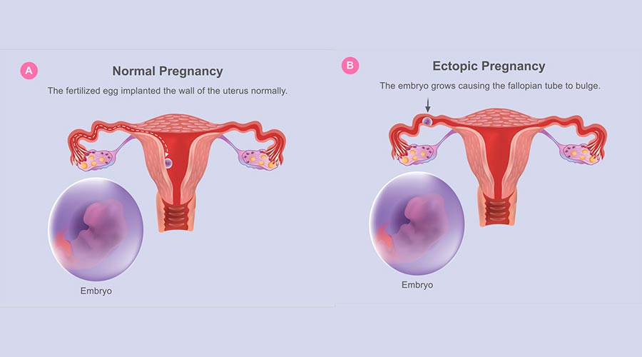 Embaràs ectòpic
