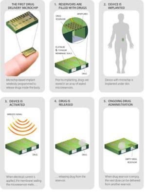 birth-control-chip-contraceptive-bill-gates-
