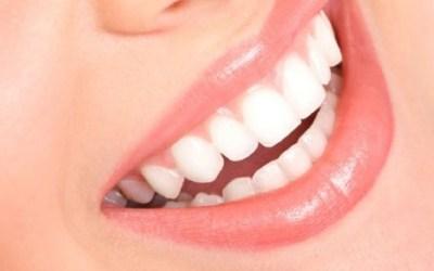 II Taller de Fotografía Dental