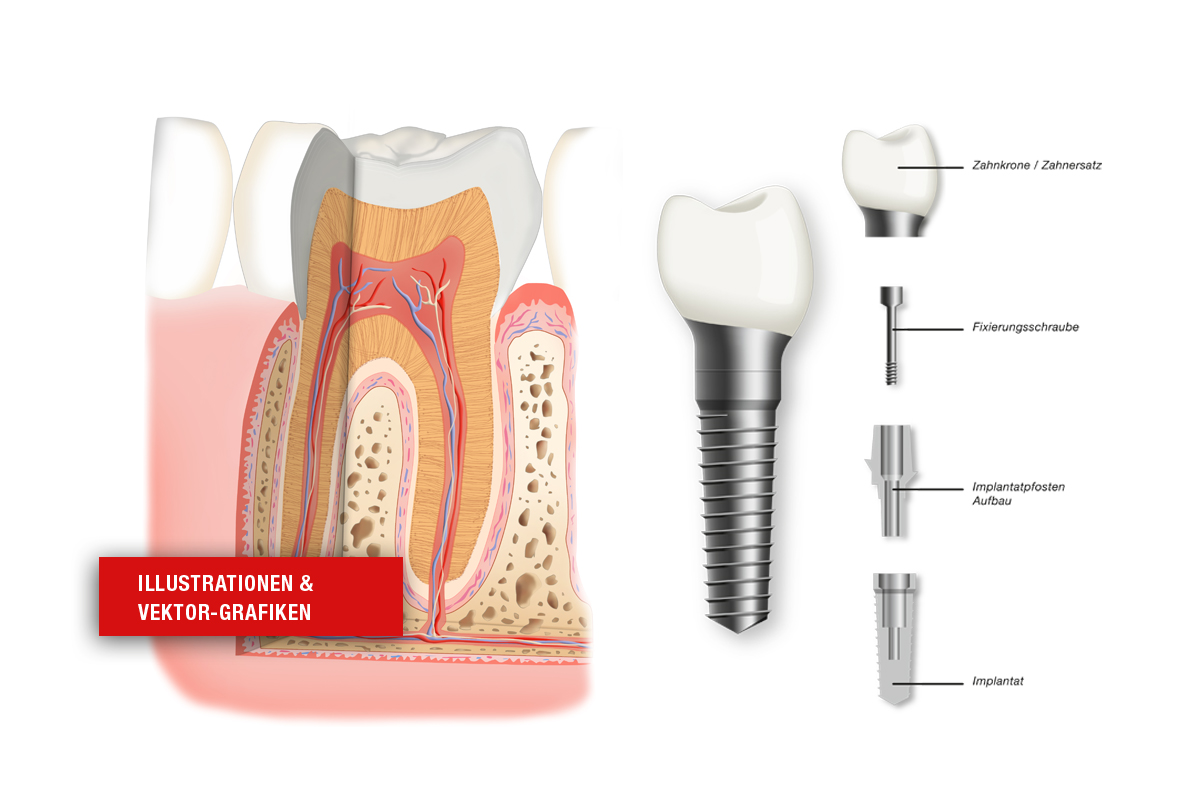 Medizinische Illustrationen Implantat und Zahnmodell
