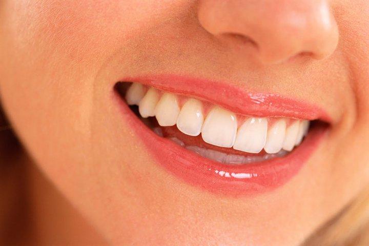 Cara Mencegah Gigi Berlubang