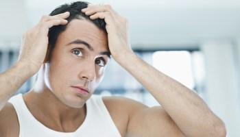 Mengetahui Penyebab Ketombe dan Cara Mengatasinya