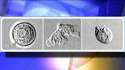 brain-eating amoeba