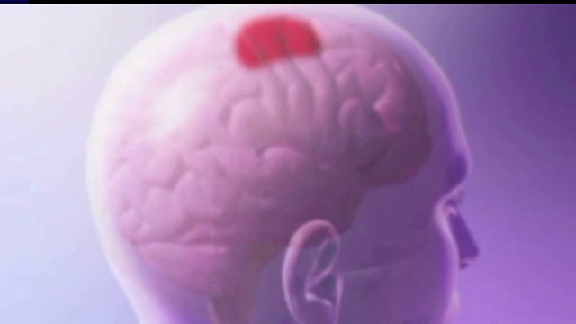 Indiana first state with concussion-related law
