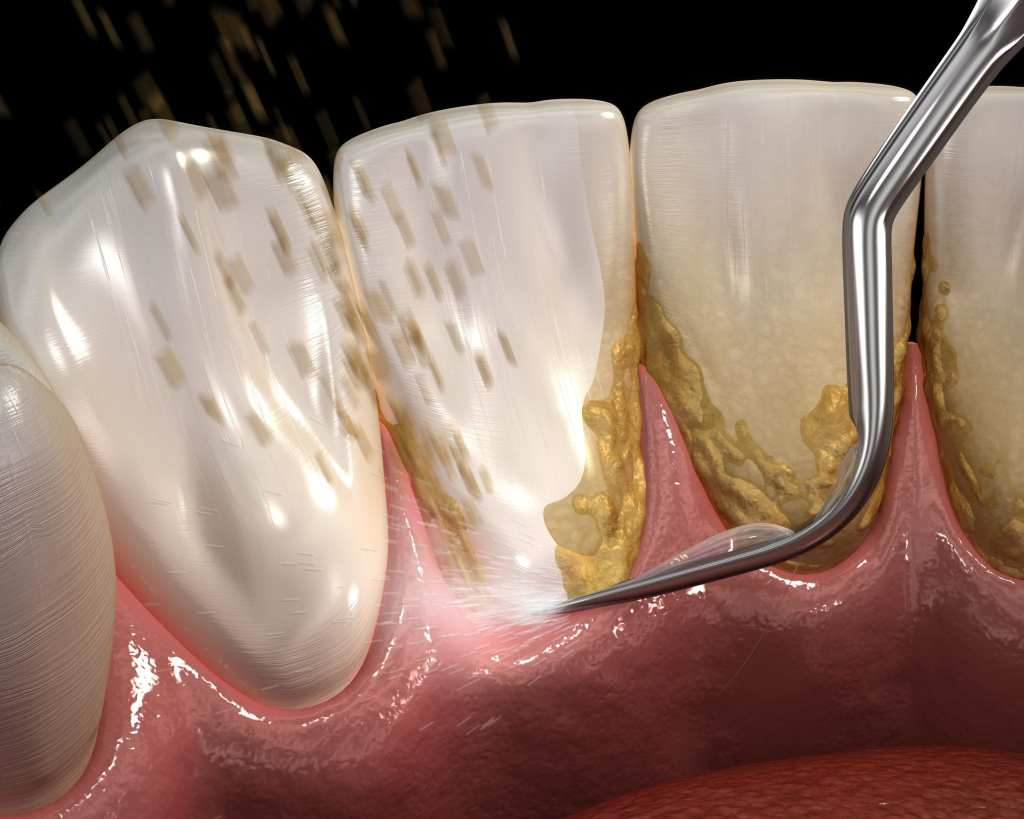Computerized image of a periodontal cleaning