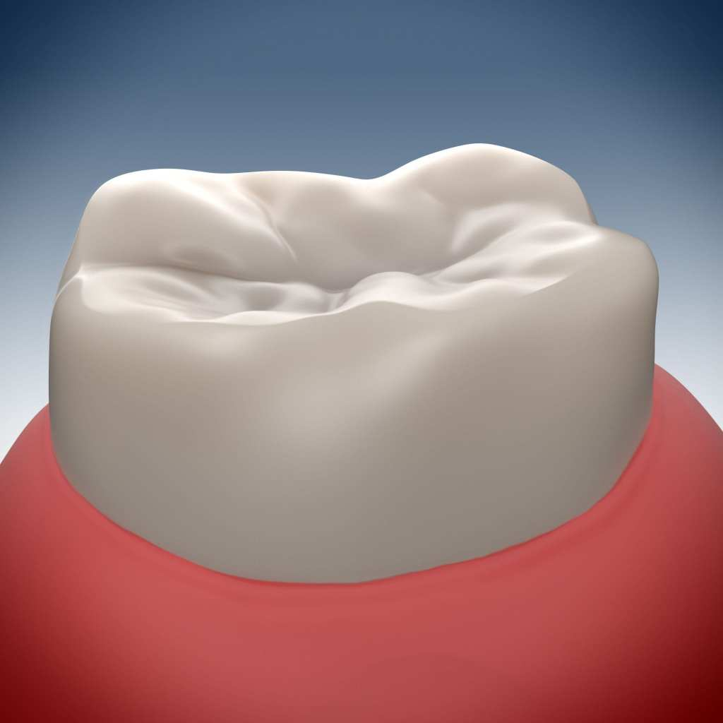 A computerized image of a molar