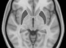 Pseudotumor Cerebri and Fluoroquinolones