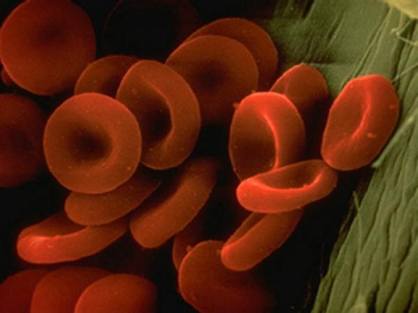 Fluoroquinolones Can lead to dangerous blood thinning problems