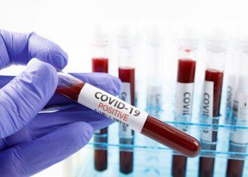Coronavirus: Plus de 2.000 nouvelles contaminations en Tunisie