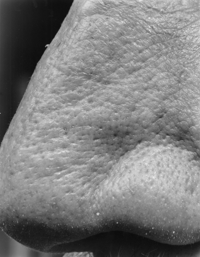 Black-and-white close-up photograph of the tip of a nose