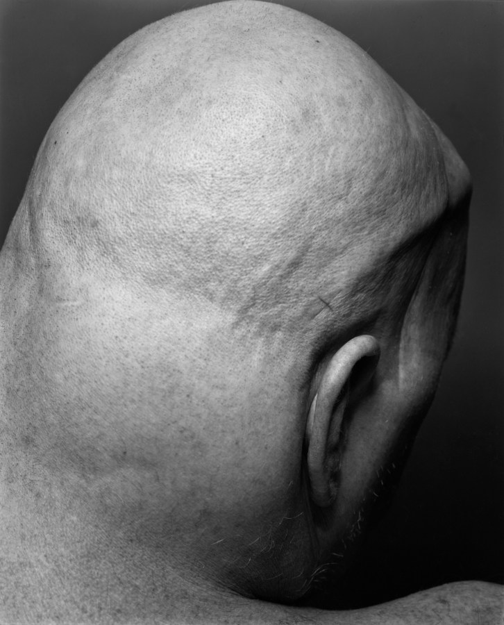 Black-and-white photograph of the back of a man's shaved head.