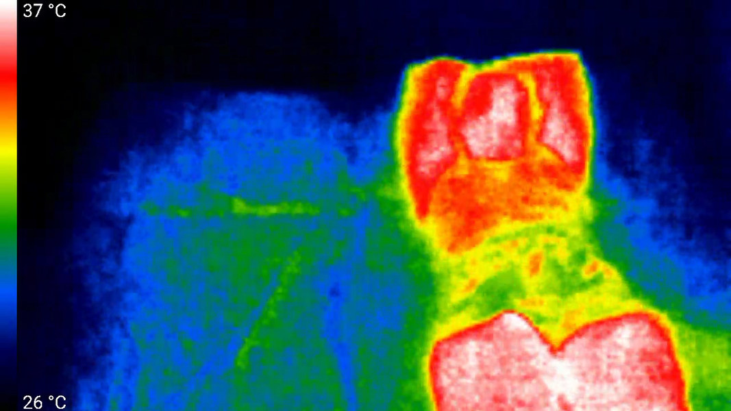 Infrared image of person on hot bed