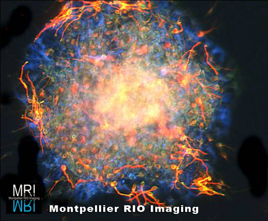 Lionel Simmonneau, INM - Neurosphère