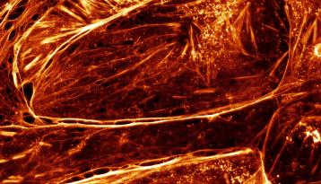 Actin fireworks© Patrice Mascalchi, Bordeaux Imaging Center and Frédéric Saltel, INSERM U-1053, University of Bordeaux