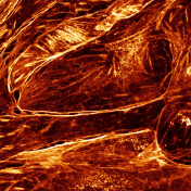 Actin fireworks© Patrice Mascalchi, Bordeaux Imaging Center and Frédéric Saltel, INSERM U-1053, University of Bordeaux
