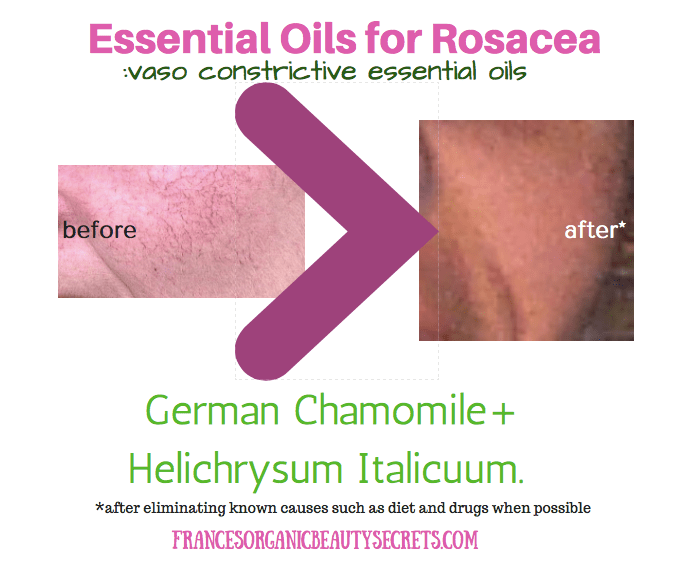 essential-oils-for-rosacea