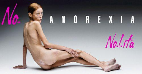 anorexia_lead
