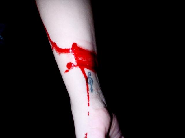 Automutilação – Não esconda suas dores.