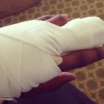 NFL Pro Loses Finger In Glove