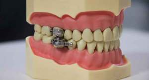 FreebieMNL - LOOK: New weight-loss tool uses magnets to clamp your jaw shut