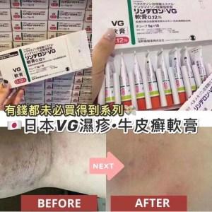日本🇯🇵 VG濕疹牛皮癬軟膏~5g
