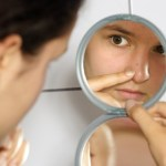 How to Treat Acne with Different Medications