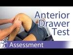 Anterior Drawer Test (Knee) - Physical Exam