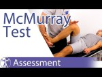 McMurray Test (Knee) - Physical Exam